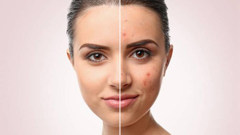7 Life-changing Tips on Makeup for Acne